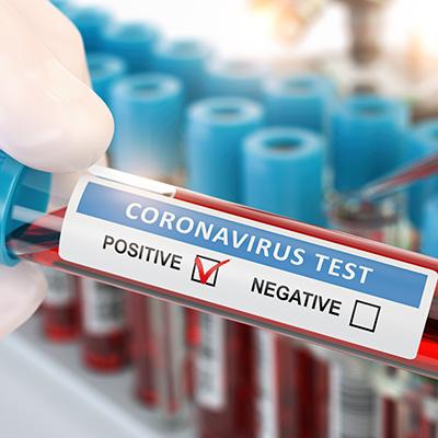 Coronavirus Test Positive